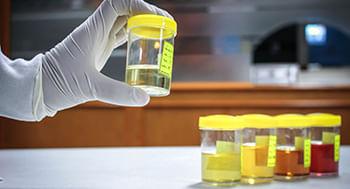 EAS---Exame-de-Urina