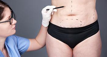 Abdominoplastia-pre-e-pos-operatorio